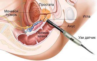 Как проводится биопсия предстательной железы?