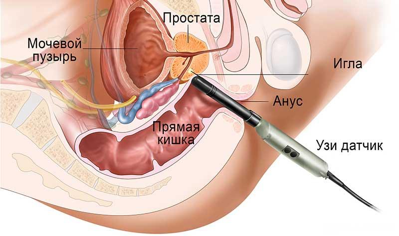 biopsiya-predstatelnoy-zhelezy